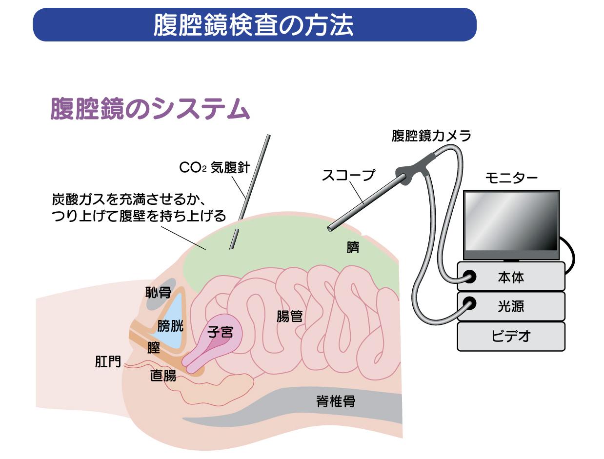 手術Link 4